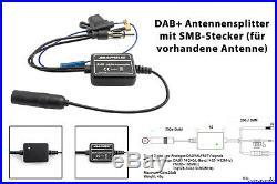 Retrosound San Diego DAB+ Wonder Bar Komplettset Oldtimer Radio Wonderbar USB